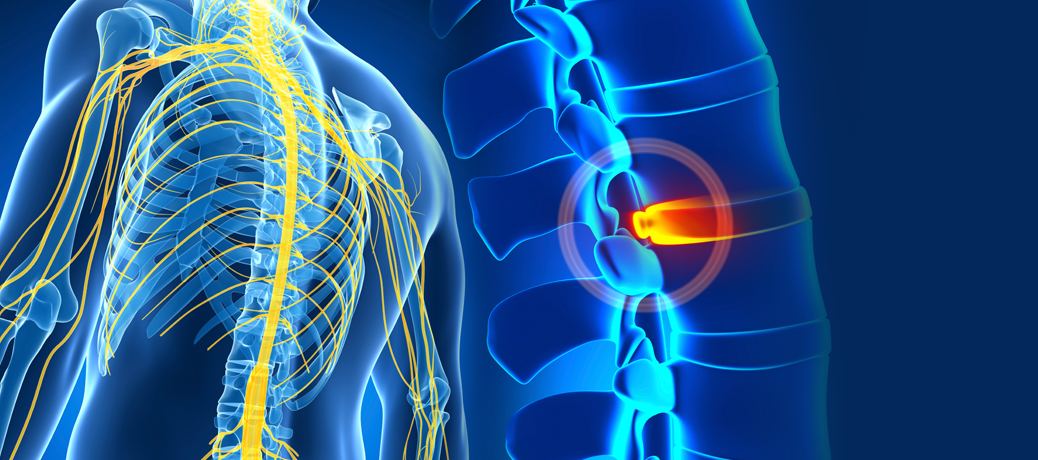 Network Spinal Anaylsis